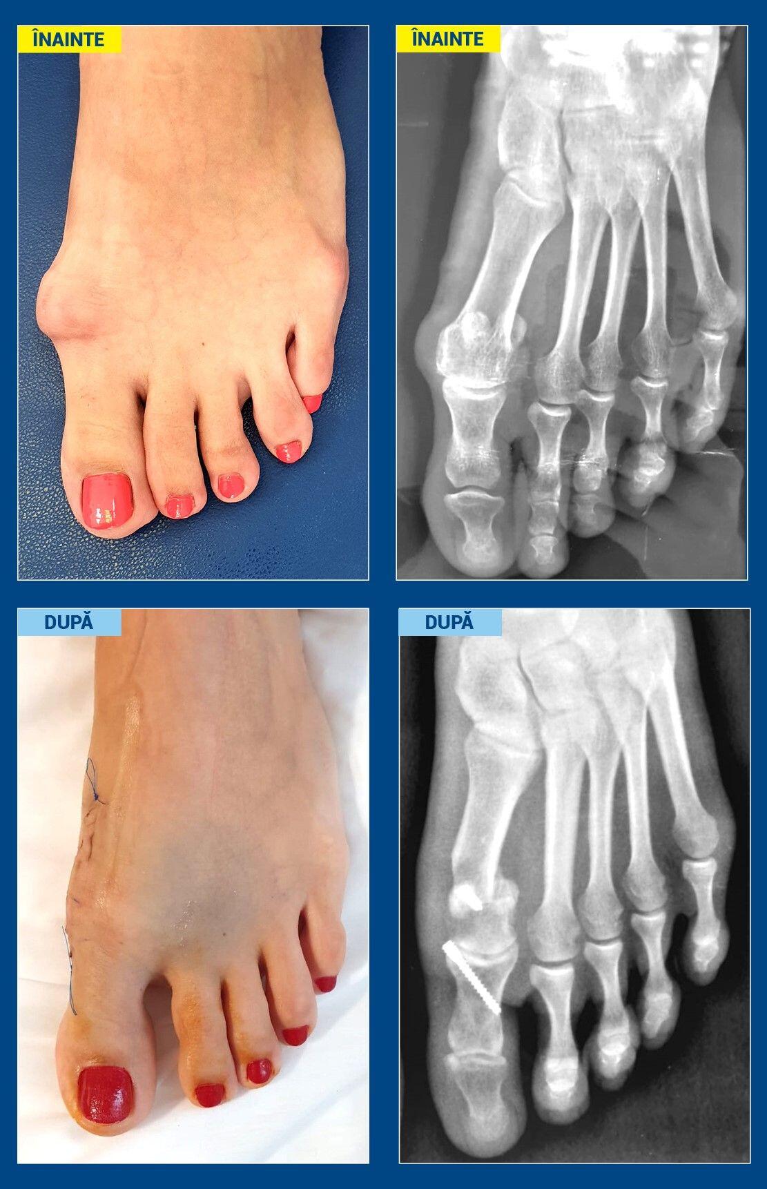 cum de a trata picioarele după operarea externă)