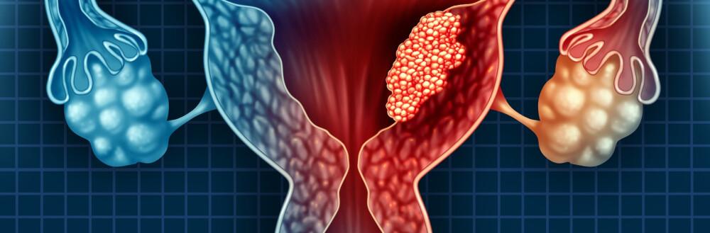 Simptomele cancerului endometrial - Amethyst Radiotherapy | Centrul de Radioterapie Amethyst