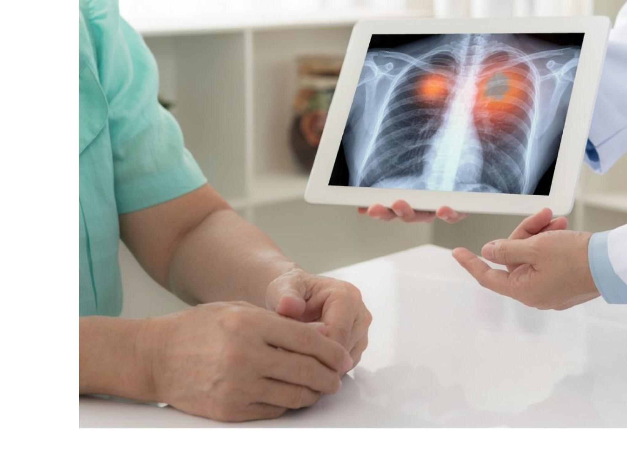 cum să faci cancerul pulmonar rapid urmărește bitcoin