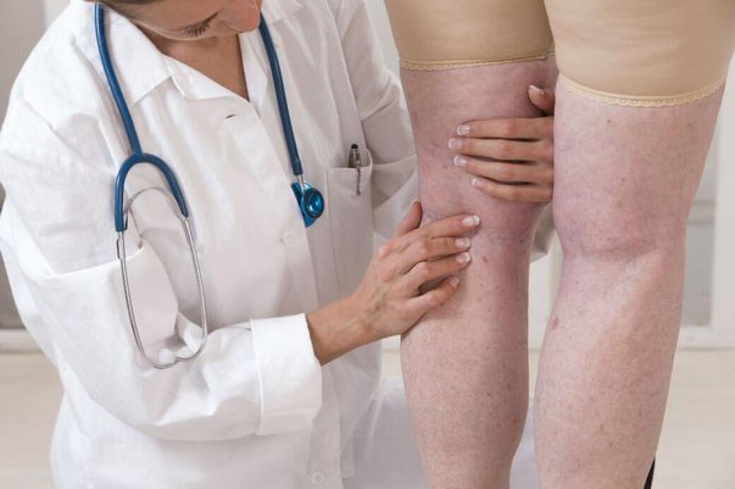 condiții de tratament cu varicoză